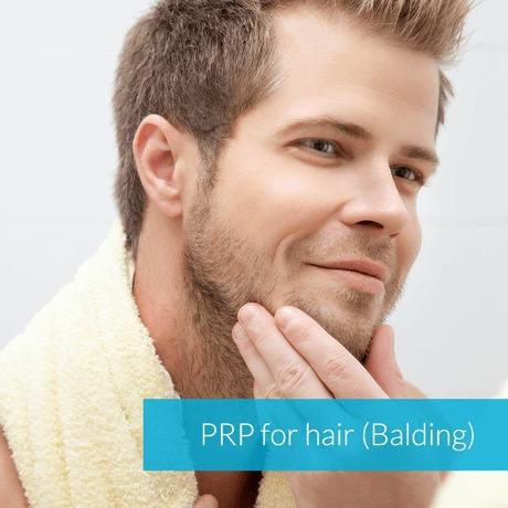 PRP for Hair Growth (Balding)